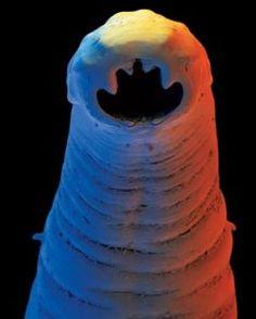 Phylum Nematoda: Necator-americanus: Hook Worm