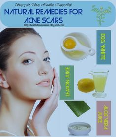 Natural Remedies For Acne Check more at http://www.healthyandsmooth.com/skin-care/acne/natural-remedies-for-acne/