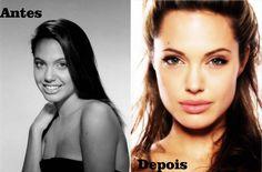 Rinoplastia da Angelina Jolie