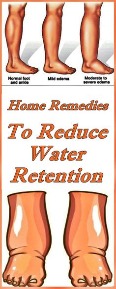 Home Remedies To Reduce Water Retention