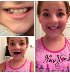 Teeth Whitening Remedies Natural Teeth Whitening Kids Love - It's basically activated charcoal - Best Teeth Whitening Kit, Teeth Whitening Remedies, Natural Teeth Whitening, Beauty Hacks For Teens, Makeup Tips For Beginners, Beginner Makeup, Best Beauty Tips, Peeling, White Teeth