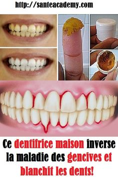 This homemade toothpaste reverses gum disease and whitens teeth! - - This homemade toothpaste reverses gum disease and whitens teeth! Source by richard_nathali Cassia Cinnamon, Honey And Cinnamon, Common Spices, Homemade Toothpaste, Teeth Care, Skin Tag, How To Slim Down, Teeth Whitening, Healthy Foods