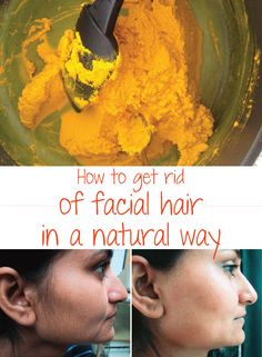 How to get rid of facial hair in a natural way