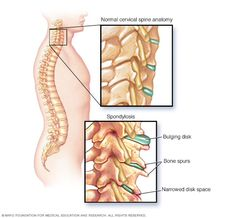 As people age, the spinal disks in the neck shrink and bone spurs often develop. If symptoms occur, nonsurgical treatments are usually effective. Muscle Spasms In Neck, Bulging Disc In Neck, Disco Intervertebral, Cervical Pain, Cervical Spondylosis, Radiculopathy, Neck Problems, Cluster Headaches, Musculoskeletal System