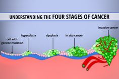 Understanding the Four Stages of Cancer.  This is a good visual representation that's easy to understand...