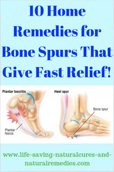 10 Sure-Fire Ways to Get Rid of Bone Spurs Naturally at Home!