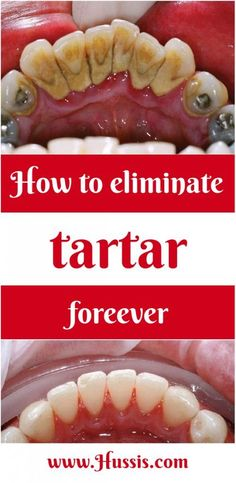 The mineral accumulation on teeth is called tartar. The amount of tartar increases in time and you should take care of it in order to prevent the occurrence of periodontitis. You can always visit your dentist to remove your tartar, but if you like to do it naturally this is the right place for you. …