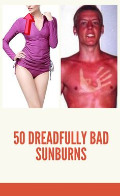 If you've ever forgotten to put on sunscreen when visiting the pool or the beach, you've probably been the victim of a nasty sunburn. We've all been there. And of course, with the popular push for more natural products these days, people are giving coconut oil a try. 50 #dreadfully #bad #sunburns