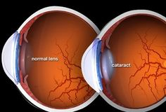 #FAQ: What is a cataract? Answer: A cataract is the clouding of a normally clear lens of the eye. This condition can make it difficult to see clearly or see at night! Here at #MaranoEyeCare we specialize in Cataract Surgery! Click the link in the bio to learn more!