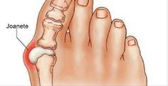 Os joanetes são depósitos de sal formados a partir de problemas como gripe, amidalite, gota, metabolismo lento, má nutrição, infecção reumática e utilização de sapatos desconfortáveis.Quem possui joanetes sofre com dor e tem dificuldade para encontrar sapatos adequados.
