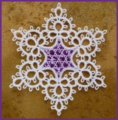 Tatting - someday I may have my BFF teach me how to make this.