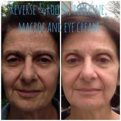 """WOW!! Here is a Fabulous Friday Transformation!! Check out fellow consultant, Alaina's moms results! She looks younger and refreshed after nine months of using Rodan + Fields! This is what Alaina had to say:  """"Here are my mom's B&As after 9 months. She started with REVERSE and Roller, then moved onto REDEFINE, added in EYE CREAM and a couple months later also added the MACRO E.""""  Message me for info!"""