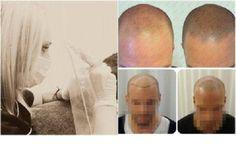De Prohairclinic gebruikt als eerste in de Benelux de exclusieve Tricopigmentatie-methode voor Micro Haarpigmentatie. Hierbij worden semi-permanente