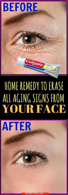 Home Remedy To Erase All Aging Signs From Your Face #health #beauty #skin #marks #wrinkles #remedies