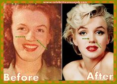Marilyn Monroe Cosmetic Surgery Nose Job Before And After Rhinoplasty