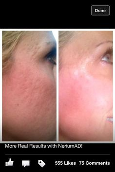 Buy your Nerium & learn more at www.merylandry.nerium.com Best!!!!!!!