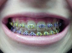 Getting braces Tuesday. Decided to do the half and half,but with peach and teal. Fake Braces, Kids Braces, Dental Braces, Teeth Braces, Braces Smile, Braces Bands, Braces Tips, Cute Braces Colors, Getting Braces