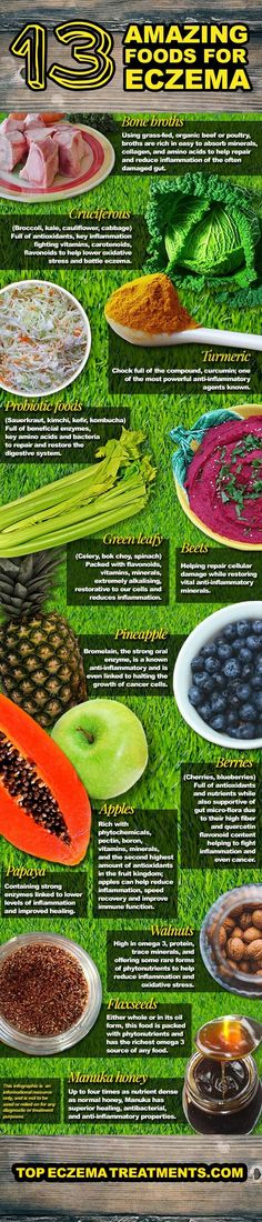 13 Amazing Foods for Eczema Sufferers. Eczema Infographic. Visit http://www.eczemacompany.com/ for all the natural remedies to cure eczema.