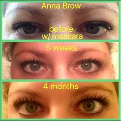 Brows, Lashes, Crows Feet, Rodan And Fields, Sensitive Skin, Eyebrows, Eye Brows, Eyelashes, Brow