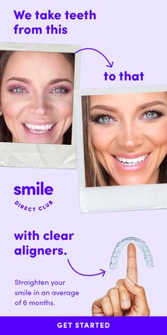 Visit a SmileShop near you and get your free image to start your smile journey. Straighten your smile with clear aligners from SmileDirectClub for 60 less than braces and faster treatment time. Turkey Burger Recipes, Pork Chop Recipes, Keto Recipes, Vegetarian Recipes, Dessert Recipes, Macaroni Cheese Recipes, Acerola, Banana Pudding Recipes, Sloppy Joes Recipe