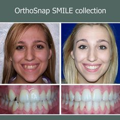 Confident smile. Confident YOU. OrthoSnap NewYork. Manhattan & Brooklyn.1.844.678.4676 www.OrthoSnapNY.com #clearbraces #invisiblebraces #adultbraces #straightteeth #teethstraightening #invisalign #braces #crookedteeth #smile #teeth #newyork #newyorkcity #manhattan #bronx #brooklyn #beautifulsmile #newyorkers #newyorkstyle #orthosnap #teethalignment #teethgoals #nobraces #bracesoff #nomorebraces #tooth #orthodontist #instasmile #dentist #dentistry #beauty