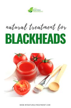 Natural Treatment for Blackheads with Tomato Natural Face Cream, Natural Skin, Natural Health, Blackhead Remedies, Natural Treatments, Natural Remedies, Skin Problems, Homemade Beauty
