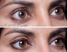 Instantly Fix Droopy, Heavy Eyelids - EasyLift Eyelid Lift