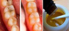 Αντιμετωπίστε τις Οδοντικές Φθορές και Κάντε Λεύκανση στα Δόντια Σας Με Αυτή την Καταπληκτική Μάσκα! #Υγεία