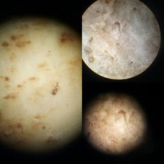 Batata doce /lupa/microscópio  Ipomoea batatas