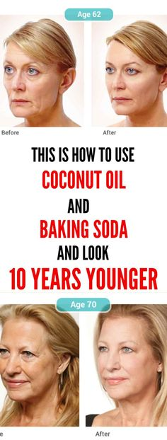 This Is How To Use Coconut Oil And Baking Soda To Look 10 Years YoungerIf you have issues with wrinkles and sagging facial skin, do now not worry. Natural Face Cleanser, Natural Skin, Coconut Oil Face Cleanser, Homemade Face Cleanser, Natural Beauty, Facial Cleanser, Homemade Facial Mask, Beauty Secrets, Beauty Hacks