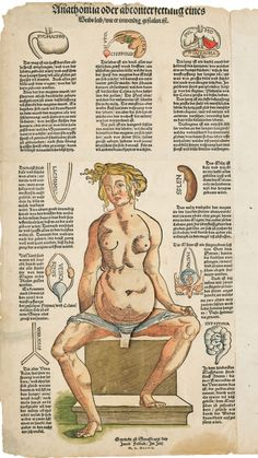 Exquisite, Disturbing Objects From 500 Years of Human Anatomical Science   In this 1544 anatomical flap print by Heinrich Vogtherr, lifting up paper tabs reveals the underlying anatomy layer by layer.  Boston Medical Library / Francis A. Countway Library of Medicine    WIRED.com