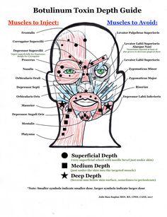 Botox: Artistry & Affordability Anti Wrinkle Injections, Botox Injections, Botox Fillers, Dermal Fillers, Facial Treatment, Skin Treatments, Botox Injection Sites, Botox Face, Facial Aesthetics