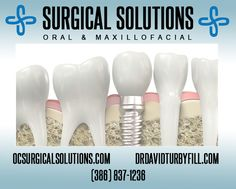 Once you learn about dental implants, you finally realize there is a way to improve your life. When you lose several teeth – whether it's a new situation or something you have lived with for years – chances are you have never become fully accustomed to losing such a vital part of yourself.  Dental implants can be your doorway to renewed self-confidence and peace of mind. www.ocsurgicalsolutions.com | (386) 837-1236