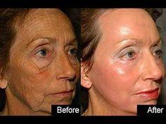 CREME Caseiro Facial,Efeito Botox Combate Rugas E Da Uma Levantada Na Pele - YouTube