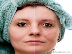 Treatment for Hyperpigmentation Black Skin Treat Hyperpigmentation at home http://meladermpigmentreducingcomplex.org/
