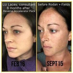 Rodan + Fields REVERSE is great for fading stubborn dark spots, melasma, and uneven skin tone. Goodbye, sun damage! Hello, gorgeous glow! caitlinhairrell.myrandf.com
