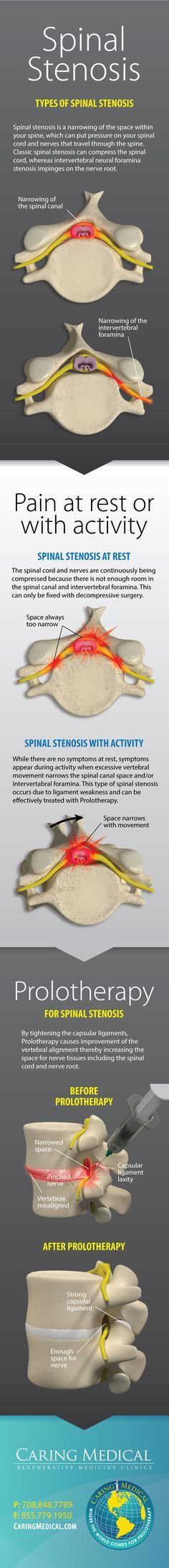 Prolotherapy for Spinal Stenosis, by tightening the capsular ligaments, Prolotherapy causes improvement of the vertebral alignment thereby increasing the space for nerve tissues including the spinal cord and nerve root.