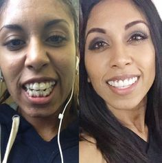 An Invisalign patient showing off her new smile!  For more information on our Invisalign treatment, please visit our website at http://dehaanortho.com/orthodontics-today/invisalign/.  #smilemore
