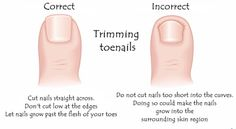 Do you have problems trimming your toenails due to a little added thickness? We will show you exactly how you should be trimming those nails! care toenails How to Trim Thick Toenails Prevent Ingrown Toe Nails, Ingrown Nail, Diy Pedicure, Pedicure At Home, Thick Toenails, Ugly Toenails, How To Cut Nails, Toe Nail Clippers, Feet Nails