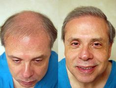 Hair loss has always been a huge issue for men over 30 but with advancement in technology, help is at hand.