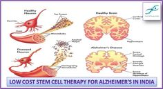 Illustration about Medical illustration of the symptoms of Alzheimers disease. Illustration of cerebral, nerve, hippocampus - 31703426 Alzheimer's Symptoms, Cerebral Cortex, Brain Diseases, Alzheimers Awareness, Stem Cell Therapy, Healthy Brain, Medical Illustration, Places, Health Education