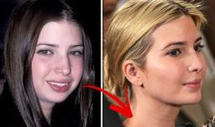 Ivanka Trump Before and After plastic surgery.