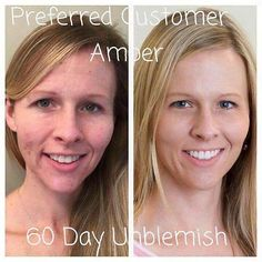 I  RF before and after photos!!! Beautiful results. I can personally say how many people I have helped with this regimen!  #rodanandfields #loveyourskin by jessi005500rodan_fields