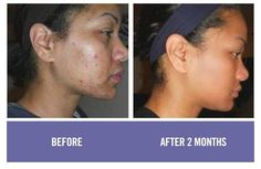 UNBLEMISH - from two of the most respected dermatologists today. Acne Blemishes, Pimples, Rodan And Fields Consultant, Before After Photo, Unclog Pores, Dark Mark, Skin Care, Face, Teenagers