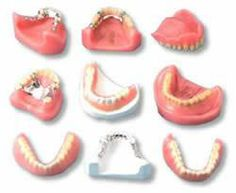 Removable #partial #dentures are an economical method of replacing ...