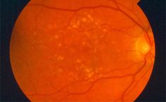 Now get the best eye care in a comfortable and caring environment. Western Australia, Cool Eyes, Pumpkin Carving, Clinic, Environment, Medical, Good Things, Profile, Medical Doctor