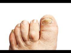 How to Treat and Beat Toe Nail Fungus | Health & Healing