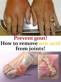 Uric acid is a substance resulting from the degradation of nucleic acids, and when in excess it is deposited in the joints, triggering gout. Gout pain in the joints is a known health condition that affects a lot of people. Gout Remedies, Health Remedies, Healthy Tips, How To Stay Healthy, Healthy Options, Health And Beauty, Health And Wellness, Health Fitness, Alternative Health