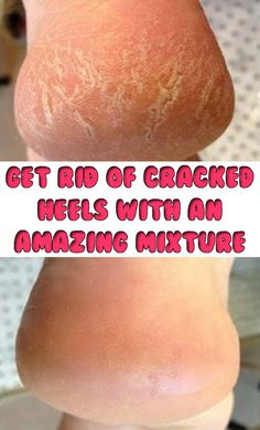 If you want to get rid of cracks on the heels without going to the beauty salon, you already have in the house all the ingredients necessary to solve this problem. You need just a little good will …