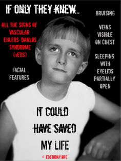 Ehlers-Danlos Syndrome EDS Today Awareness. Please spread these posters to help bring education/awareness and hopefully a correct diagnosis.